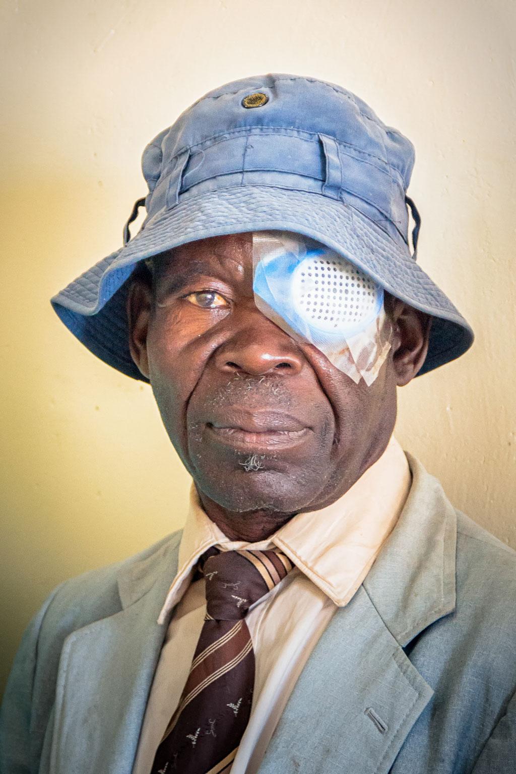 African man after cataract surgery